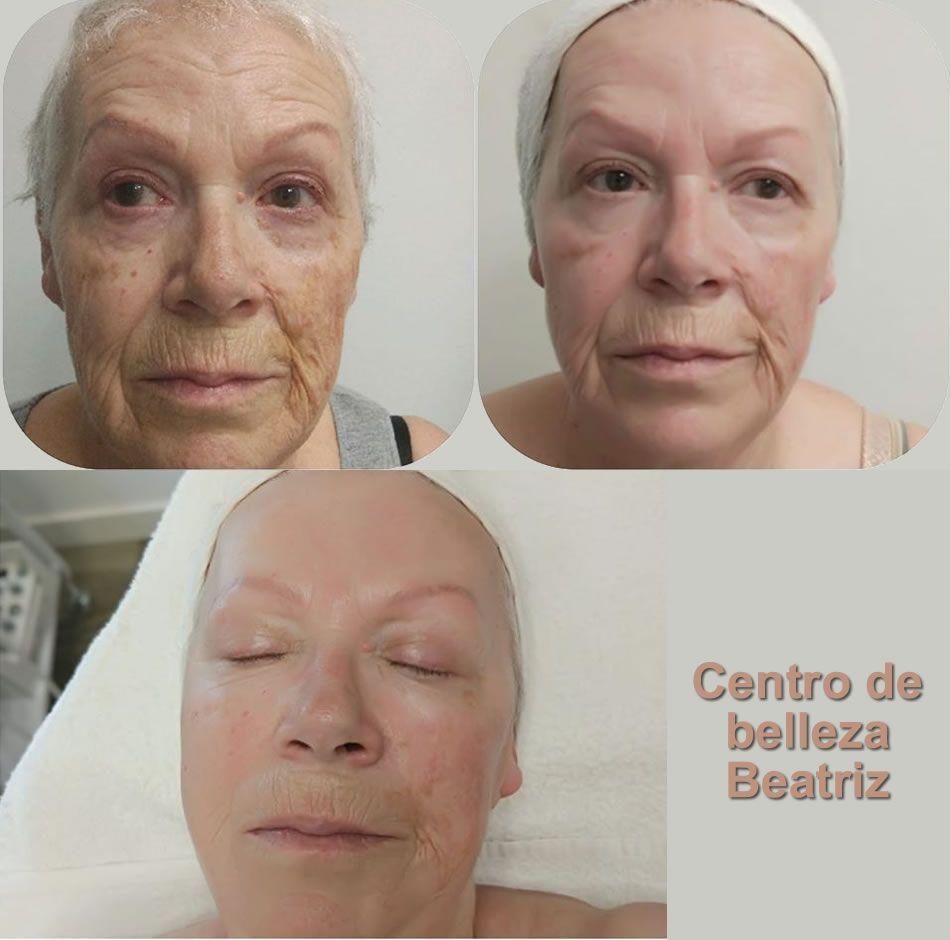 BELLACTION DUO Botox-Effekt im Gesicht nach 5 Anwendungen