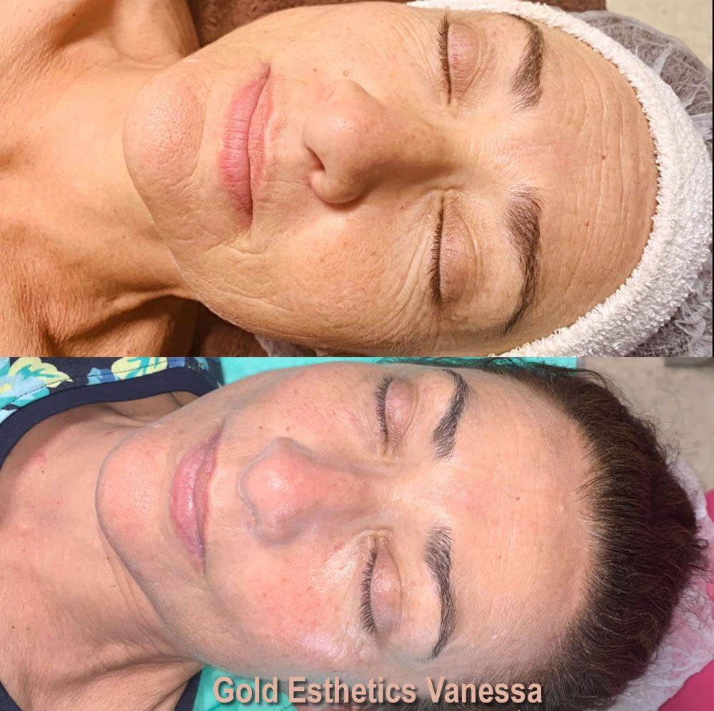 BELLACTION DUO Botox-Effekt im Gesicht nach 6 Anwendungen