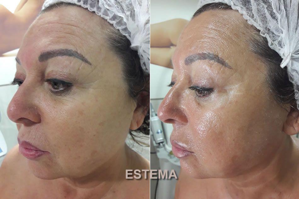 BELLACTION DUO Botox-Effekt im Gesicht nach 4 Anwendungen